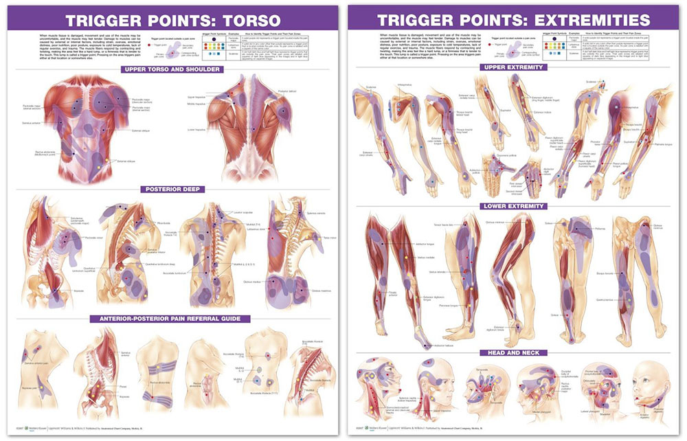 Trigger point charts.